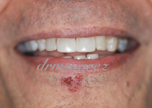 Central incisors restored with direct composite veneer